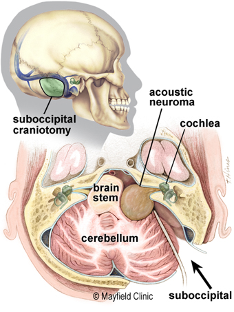 suboccipital approach