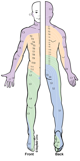 Figure 10, Illustration of dermatome pattern