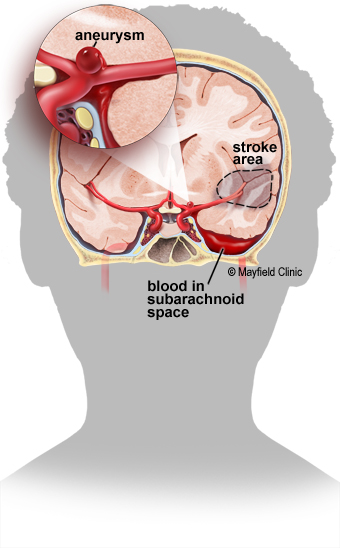 Figure 1. aneurysm