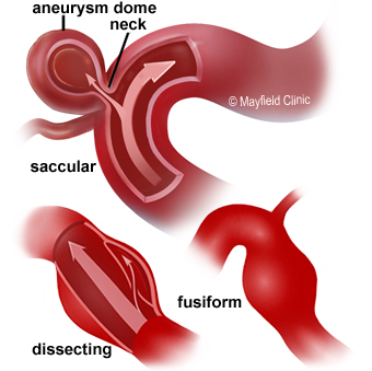 types of aneurysm