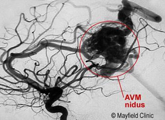 AVM angiogram