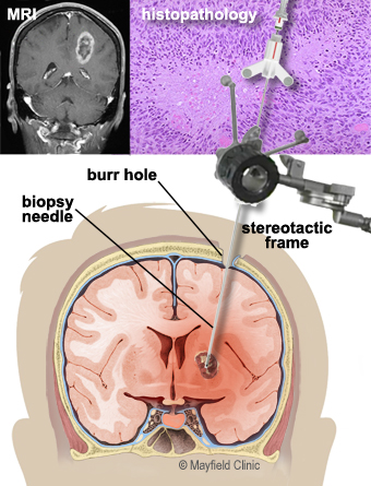 brain tumors overview of types, diagnosis, treatment options Brain Herniation Diagram during a needle biopsy, a hollow cannula is inserted into the tumor small biting instruments remove bits of tumor for the pathologist to examine and