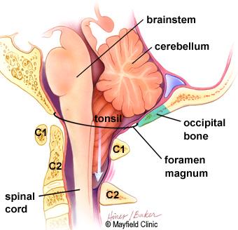 chiari decompression surgery mayfield brain spine