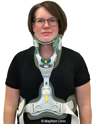 CT brace
