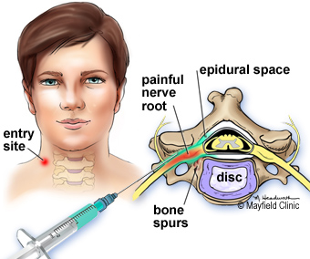 Epidural steroid injection (ESI)2