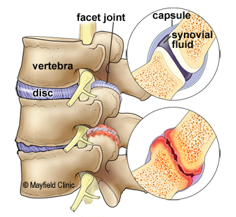 Wear and tear to the disc and facet joint can cause arthritic pain, swelling and stiffness