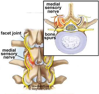 The irritated joint sends pain signals to the brain via small nerves in the capsule called medial branch sensory nerves