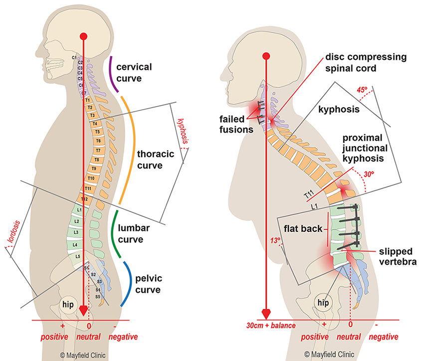 Illustration, normal spinal curve (left) and Amy's flatback and junctional kyphosis (right)