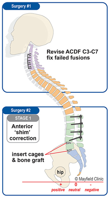 Illustration, summary of surgery 1 to fix her neck and surgery 2 to shim the spondylolisthesis