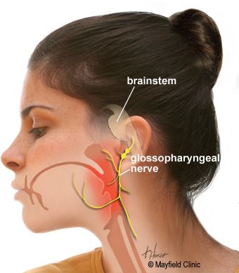 Pain deep in throat when coughing