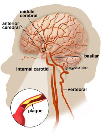 carotid anatomy