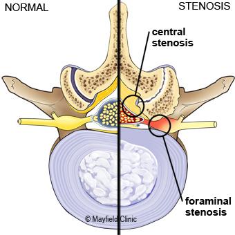 spinal decompression surgery cincinnati oh mayfield brain spine