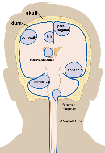 A Meningioma Is A Tumor That Grows From The Dura Mem Ne Blue Covering Thein And Spinal Cord Meningiomas Are Named According To Their Location