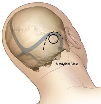 MVD craniectomy