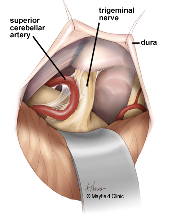arterial compression