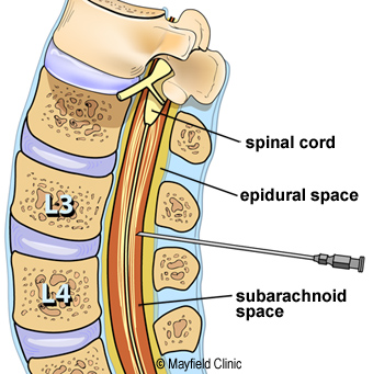 spinal canal