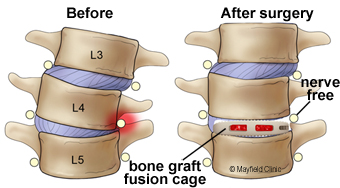 Illustration, a lateral fusion (LLIF) for moderate scoliosis restores the normal tilt and height of the disc space
