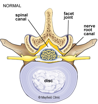 Illustraton showing a normal healthy vertebrae