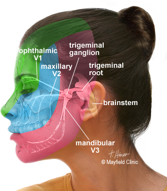 facial pain, trigeminal neuralgia cincinnati, oh mayfield brain Front Side and Face trigeminal anatomy